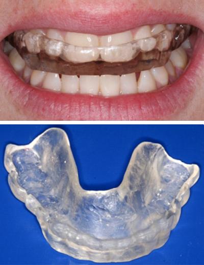 Occlusal Splints Nightguards Pymble Dental